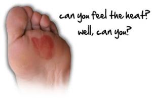foot-blister