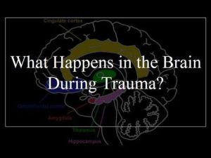 trauma1sm