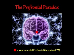 the-prefrontal-paradox-1-638